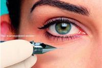 L-T-L oční linky